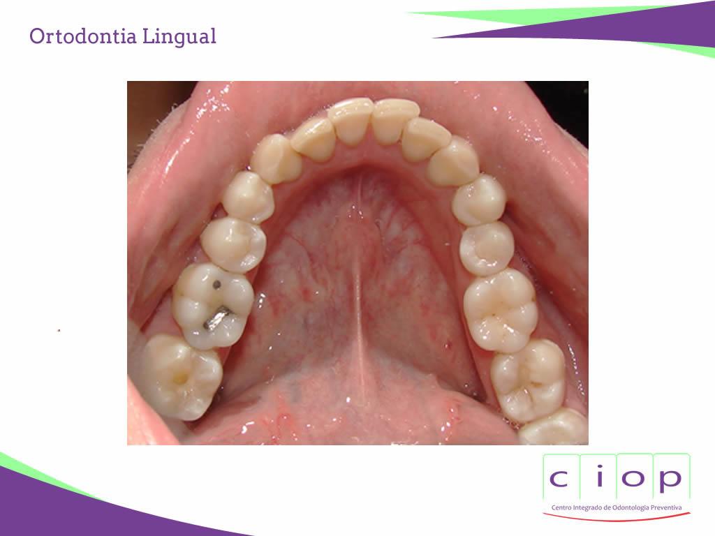 ciop-ortodontia-lingual1