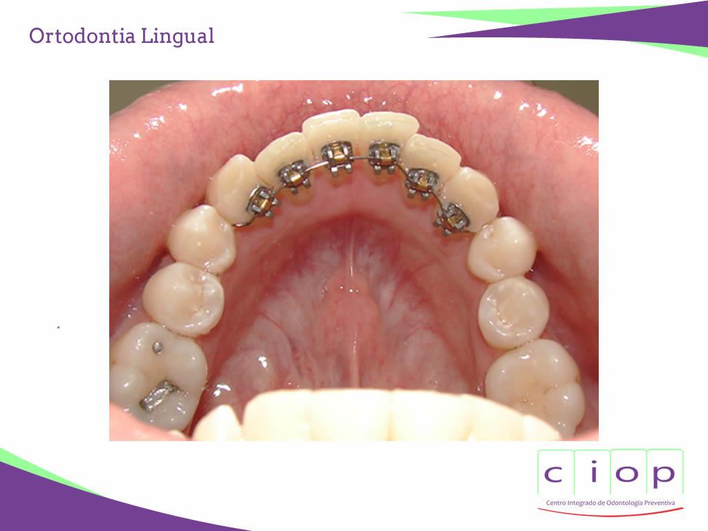 ciop-ortodontia-lingual2