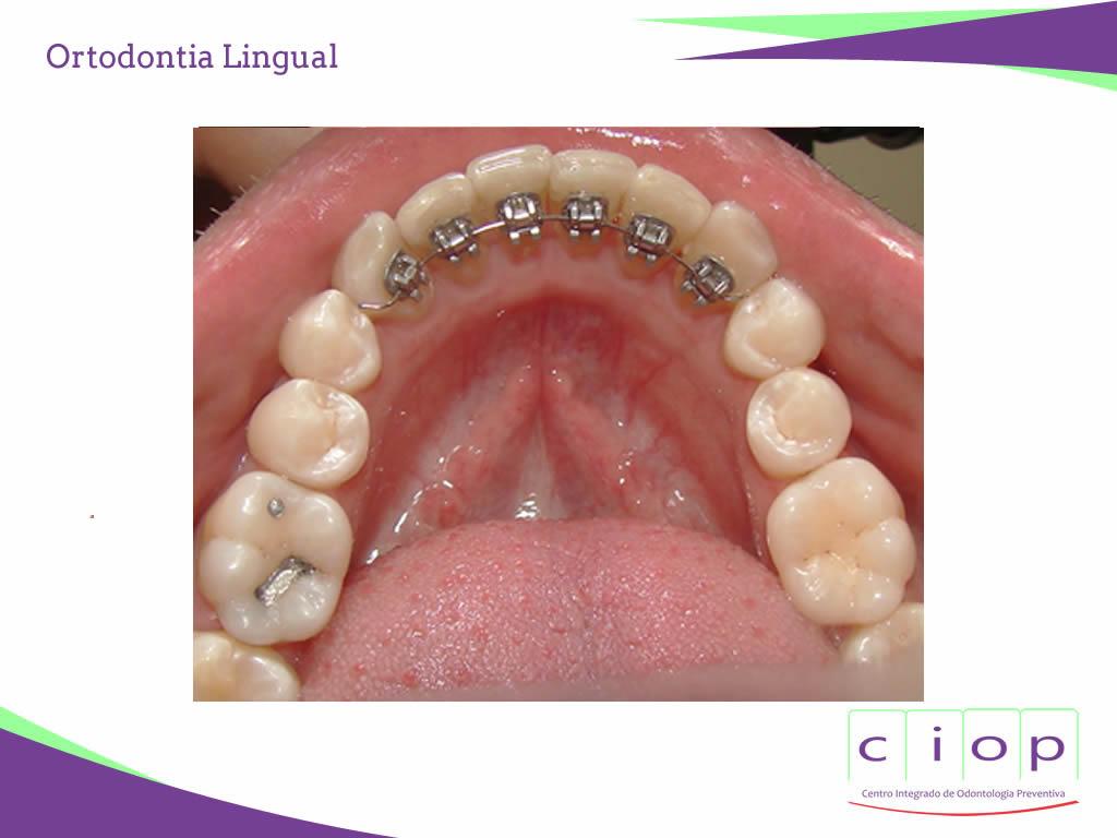 ciop-ortodontia-lingual3