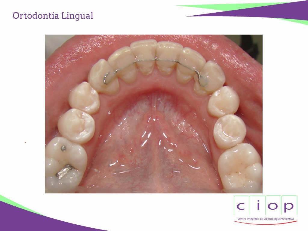 ciop-ortodontia-lingual4